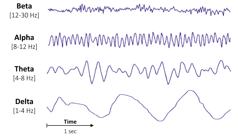 Bandpower of an EEG signal